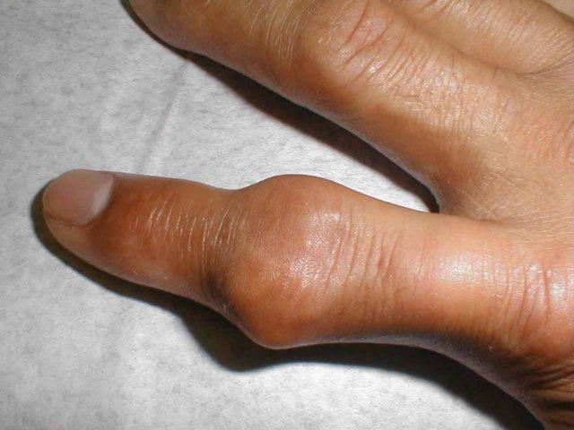 Узелковые отложения и костные разрастания приводят к значительным изменениям внешнего вида