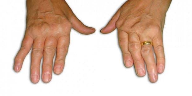 У пожилых людей подобные изменения затрагивают костную ткань и хрящ пальцев