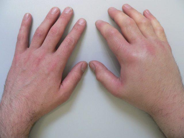 Очень часто страдает и сердце, в частности, происходит поражение миокарда