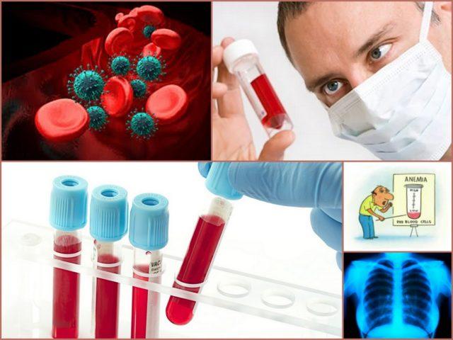 Микробиологического обследования