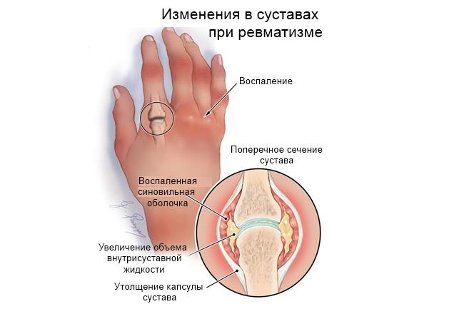 Ревматический артрит – это сложная патология, которая может распространяться на щитовидную железу, почки, печень, глаза и легкие