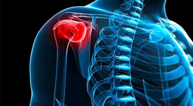 Больной ощущает боль в области крупных суставов, наблюдается лихорадка