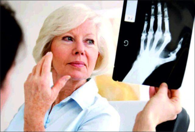 Рентген пораженных суставов