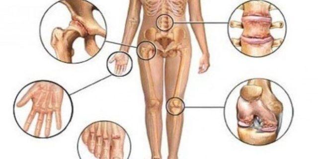 В первую очередь поражаются более мелкие суставы, кисти рук и фаланги пальцев, а затем идет распространение на голеностопные, коленные и другие крупные суставы