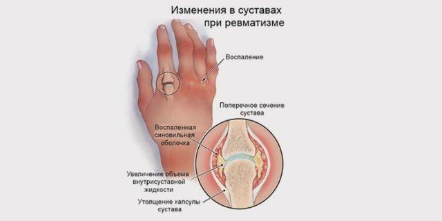 В качестве других характерных для полиартрита симптомов у больного обнаруживаются ревматоидные узелки