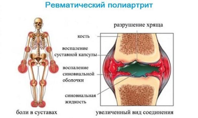 Он составляет около 40% от всех других суставных болезней