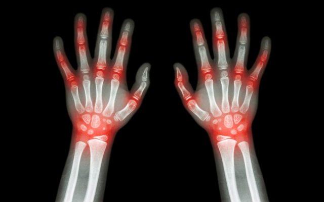 Пациент может годами и не подозревать о том, что у него ревматоидный артрит