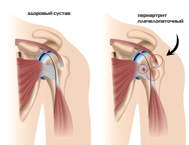 Нередко артрит путают с артрозом, но оба эти заболевания кардинально отличаются друг от друга
