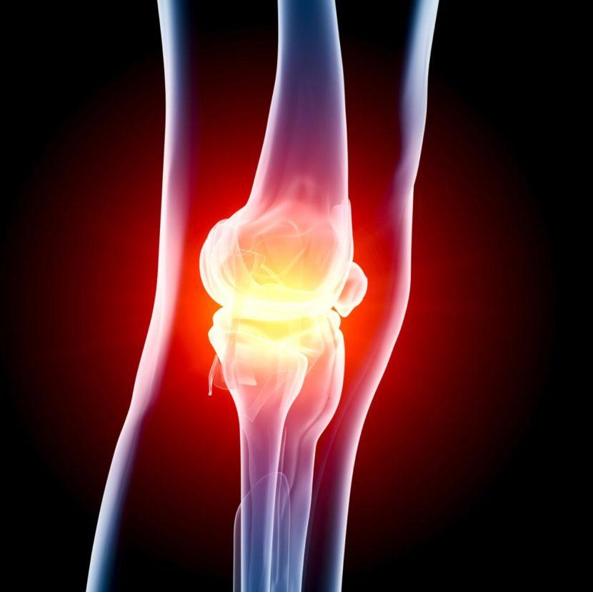 Полиартрит коленного сустава – современные методы лечения
