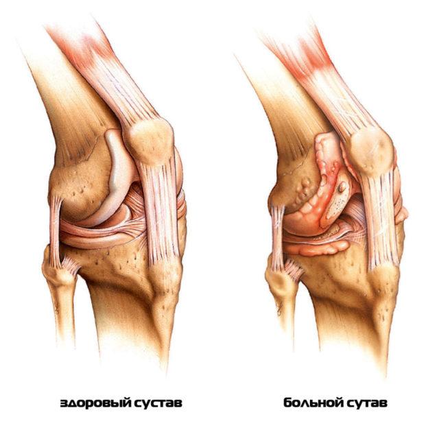 Травматическое повреждение суставных элементов – ушиб, разрыв мениска, перелом большой берцовой бедренной кости в области сустава