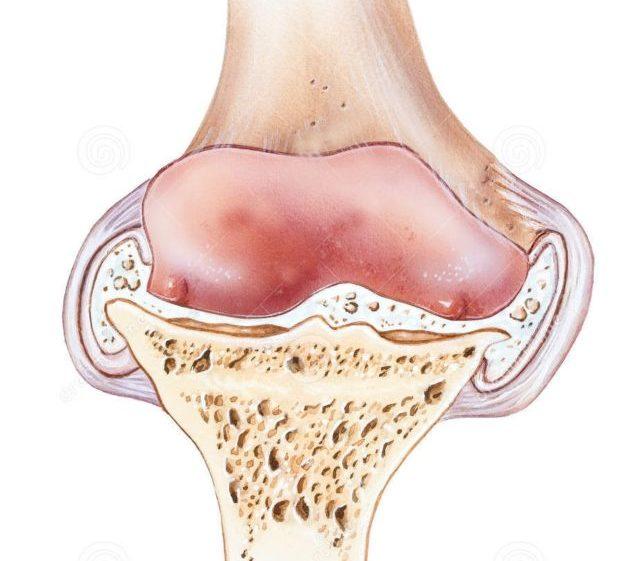 Симптомы полиартрита колена при бруцеллезе – волнообразная лихорадка, боли, отек, покраснение кожи колена
