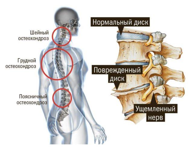 Среди приобретенных причин наиболее часто встречаются травмы шейного отдела позвоночника и последствия плоскостопия