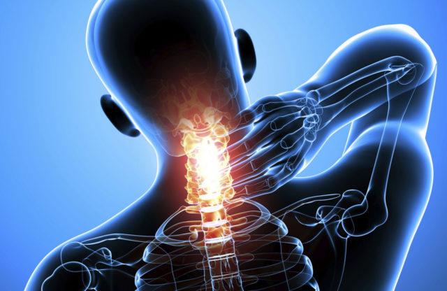 При унковертебральном артрозе поражается межпозвоночный диск