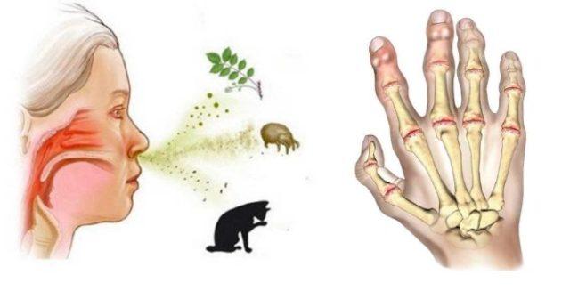Человек начинает ощущать непереносимость к пыли, определённой пище, шерсти животных, цветочной пыльце, пуху, запахам и медицинским препаратам