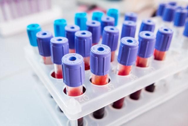 При аллергии повышается концентрация эозинофилов и ускорено СОЭ