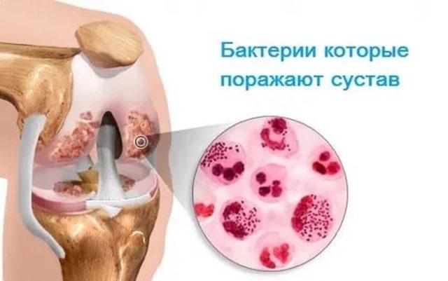 Это заболевание возникает в результате сильной чувствительности к различным инфекциям и аллергенам