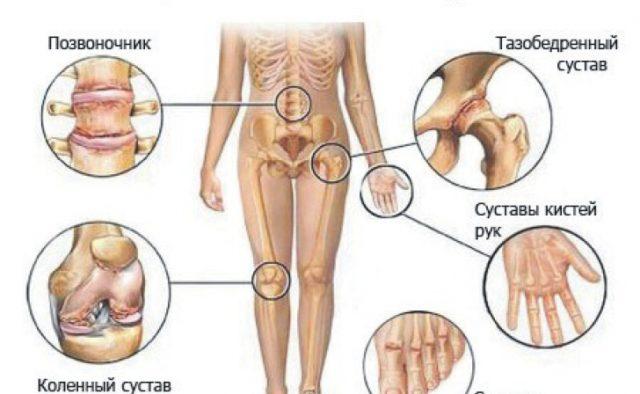 Предупредить болезни поможет понимание провоцирующих факторов, под действием которых начинаются негативные процессы в хрящевой ткани