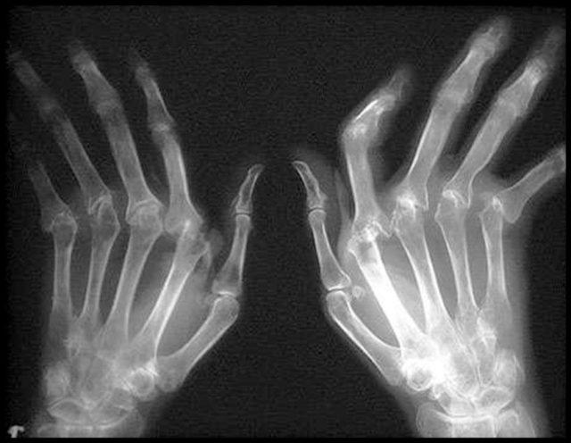 К вспомогательным методам относятся ультразвуковое исследование суставов, компьютерная и магнитно-резонансная томография