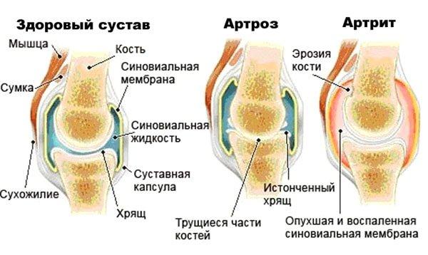 В латинской медицинской терминологии суффикс «-ит» означает воспалительный процесс, а «-оз» – разрушительный