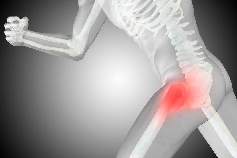 Артроз тазобедренного сустава 1 степени (коксартроз): симптомы и лечение
