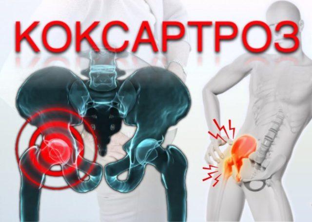 Ограничение подвижности конечности также является симптомом коксартроза