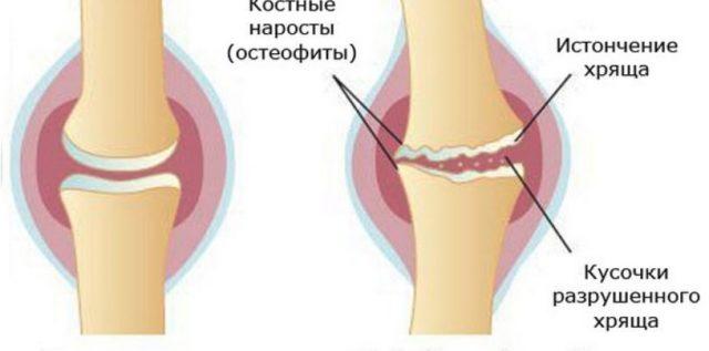 Патология возникает как следствие утраты хрящевой тканью эластичности
