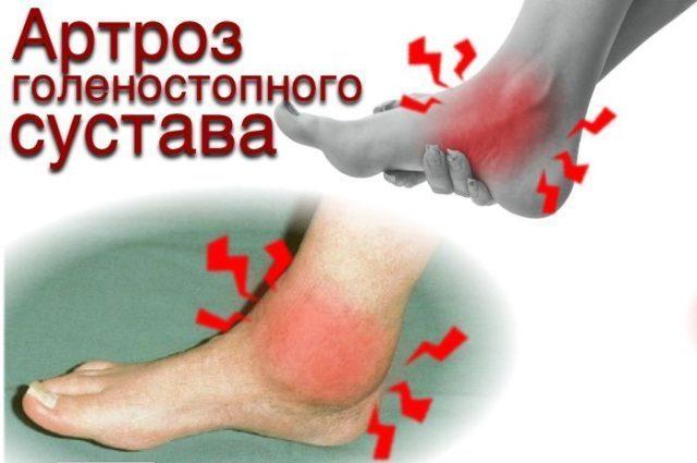 С течением времени возникают болевые ощущения и другие симптомы, наиболее выраженные при поражении суставов, на которые приходится основная нагрузка при переносе веса тела