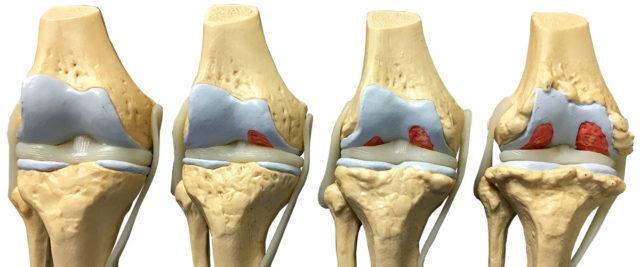 Процесс развития остеоартроза голеностопного сустава занимает много времени, и в большинстве случаев боль и скованность движений возникают только на довольно продвинутой стадии заболеваний