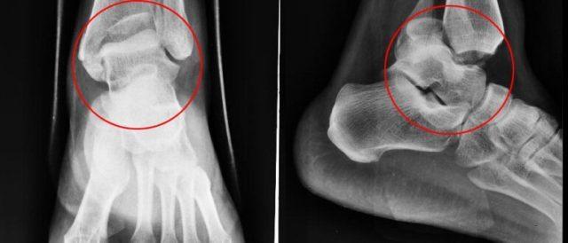 При остеоартрозе голеностопного сустава и стопы простая радиограмма является наиболее рациональным методом исследования
