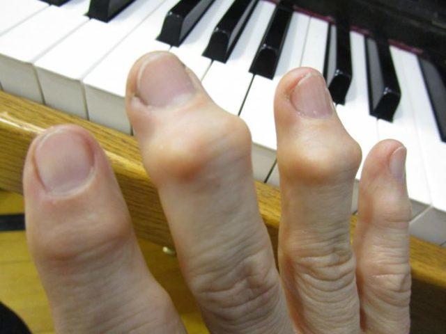 На последних стадиях артроз суставов пальцев рук сильно снижает качество жизни человека, мешает ему полноценно работать