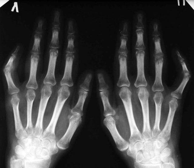 На полученных снимках хорошо видна деформация костей, сужение щелей пораженных суставов, остеофиты