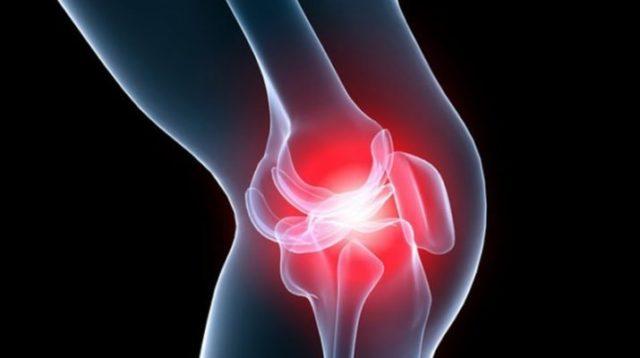 При деформирующем остеоартрозе независимо от локализации патологического процесса пациенты обычно предъявляют жалобы на боль, ощущение характерного хруста, ограничение подвижности