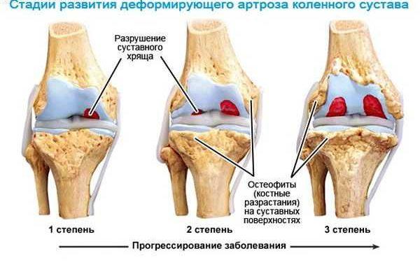Прежде всего, страдают колени, бёдра, стопы
