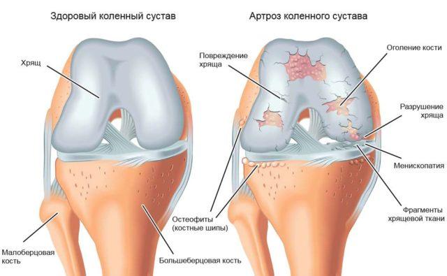 Наблюдается разрушение суставного хряща, субхондральный склероз, краевое разрастание костной ткани