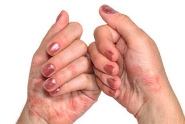 Точная природа болезни достоверно не установлена, но одной из наиболее вероятных ее причин считается нарушение обмена веществ