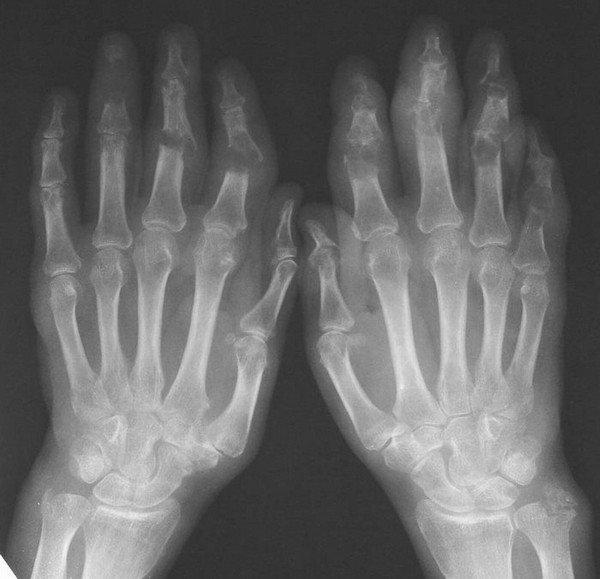 Рентгенологическая картина псориатического артрита имеет ряд особенностей