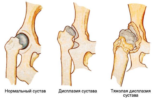Двухсторонний коксартроз 1 степени характеризуется проявлением незначительных болевых ощущений в области суставного соединения тазовых костей
