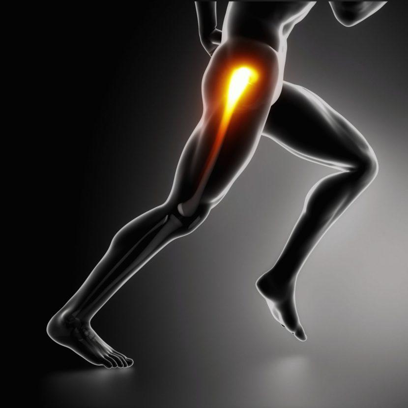 Коксартроз тазобедренного сустава 2 степени симптомы