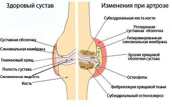Определение, входящее в состав названия, означает распространение патологического процесса на несколько суставных полостей