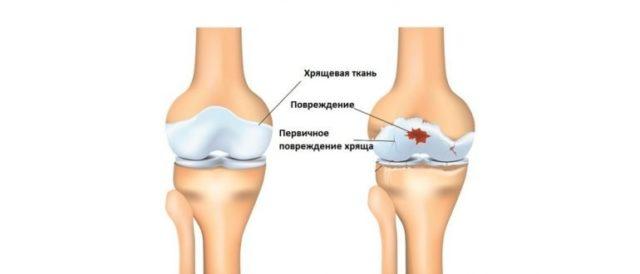 По тяжести состояния и негативному влиянию на качество жизни из всех разновидностей этой болезни выделяется генерализованный остеоартроз суставов