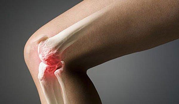 В ряде случаев заболевание обнаруживают случайно, при рентгене колена при травме или по другому поводу