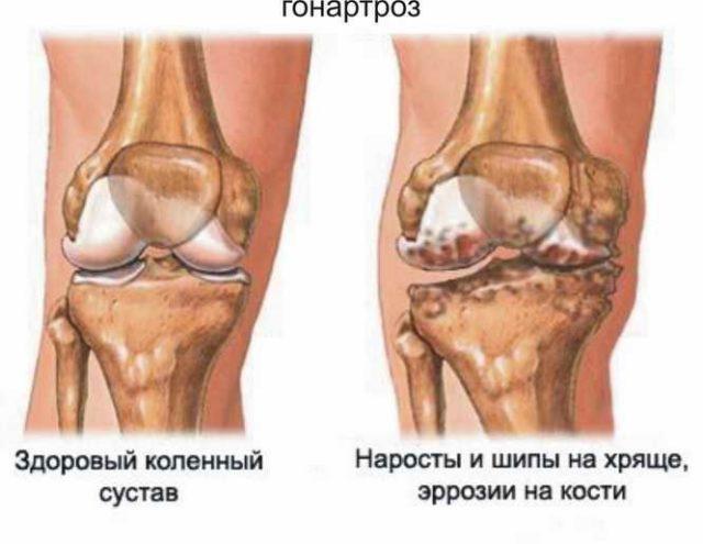 Поражение сустава при гонартрозе медленно, но неуклонно прогрессирует