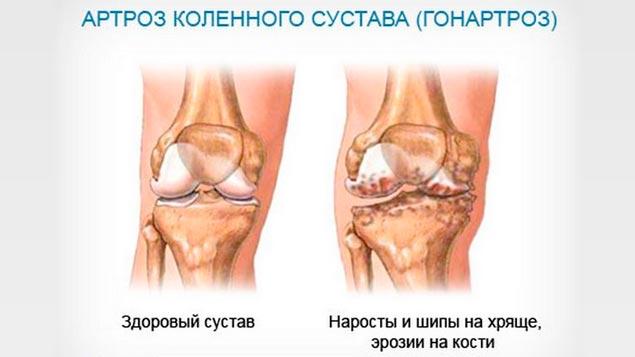У молодых гонартрозы чаще всего являются следствие травм суставов