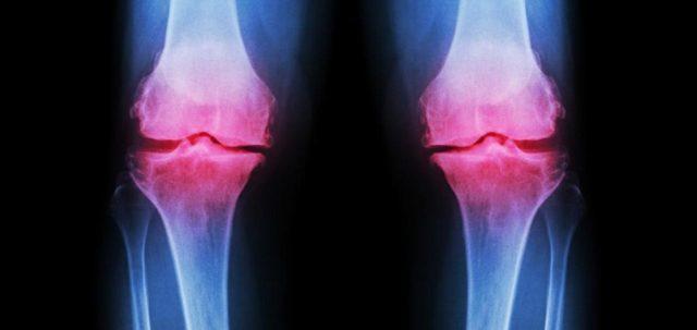Регулярные боли в коленном суставе, но они ещё не приобретают хронический характер