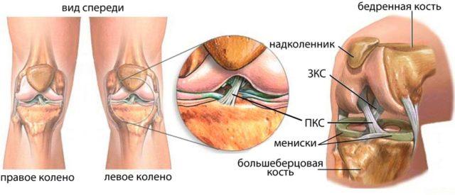 Эта болезнь имеет три стадии развития, но самой распространённой считается гонартроз коленного сустава 2 степени
