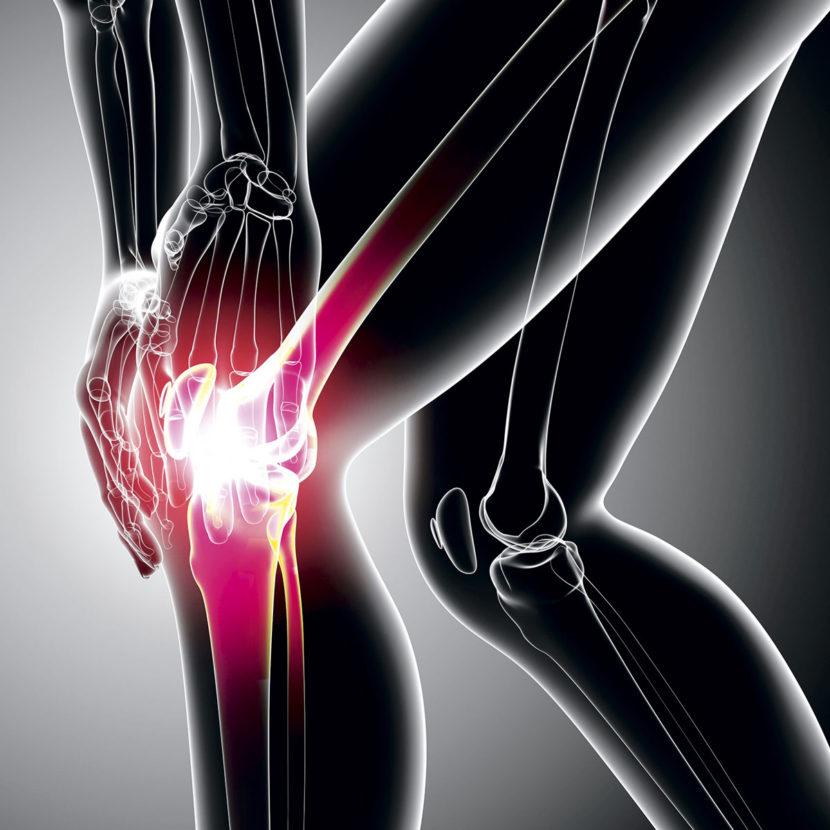 Шесть действенных способов лечения гонартроза коленного сустава 3 степени