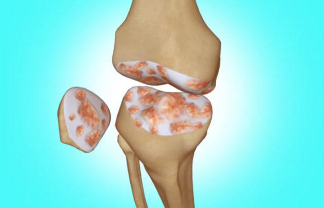 При боли высокой интенсивности пациенты должны передвигаться с помощью костылей
