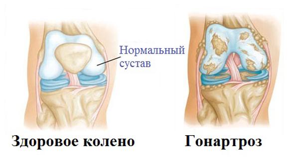 Заболевание протекает хронически, полная неподвижность в колене развивается в течение длительного периода