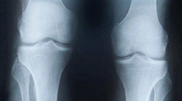 Инструментальная диагностика включает в себя проведение рентгенографии, компьютерной томографии, а также артроскопии