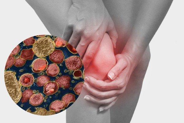 Урогенный артрит входит в триаду болезни Рейтера